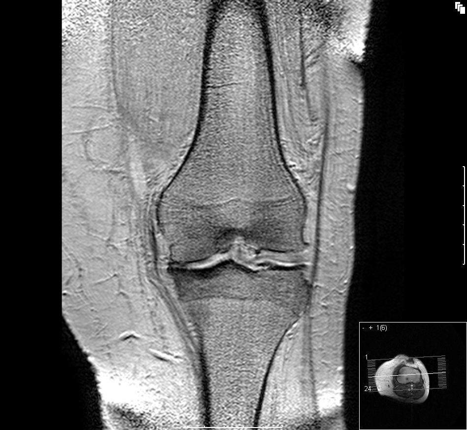 Kuva: Polver magneettikuvassa nivelrako on selvästi kaventunut. http://commons.wikimedia.org/wiki/User:Scuba-limp