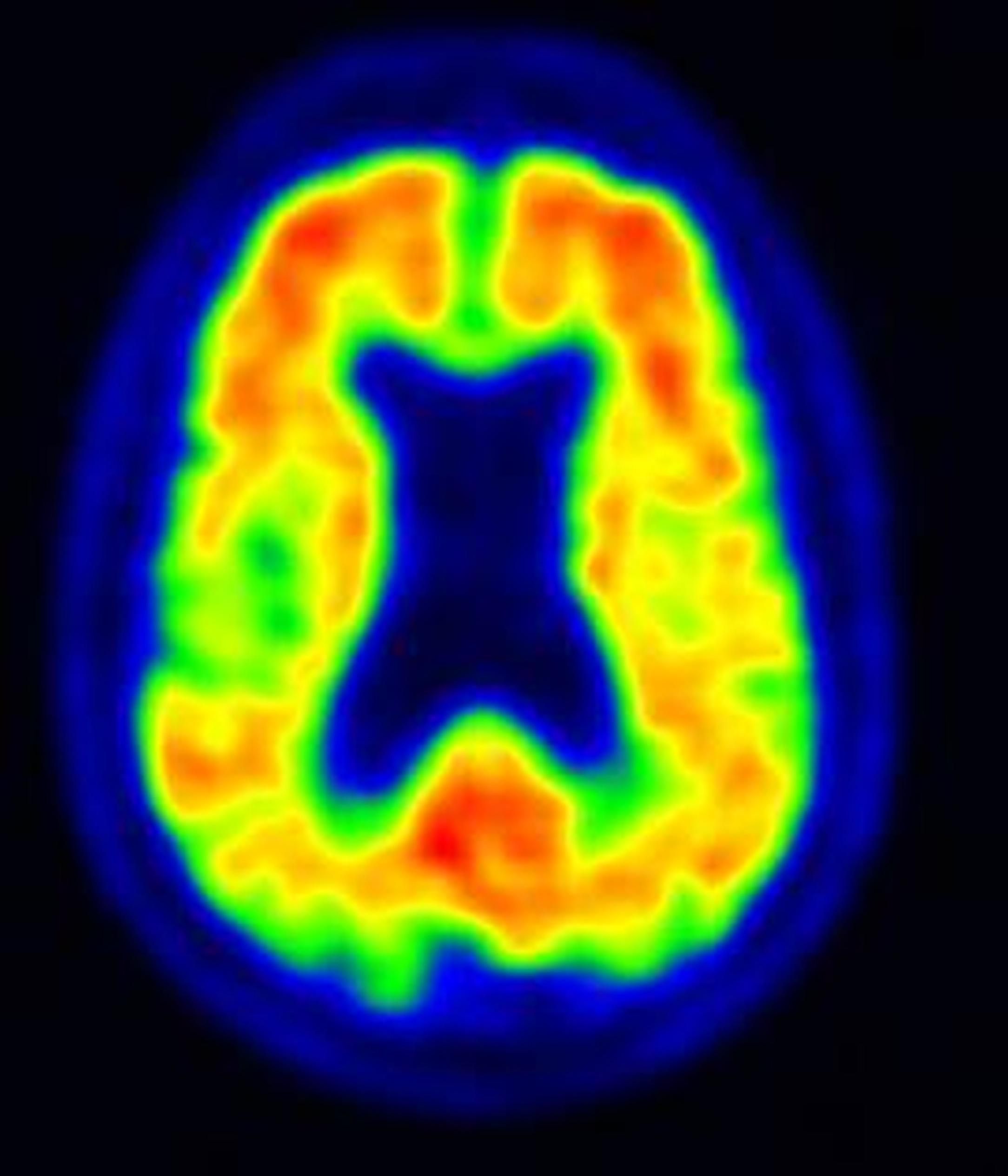 Aivojen amyloidi-PET-kuva. Potilaalla on selvä merkkiainekertymä ja hän sairastaa Alzheimerin tautia (Kuva Juha Rinne, TYKS ja TY)
