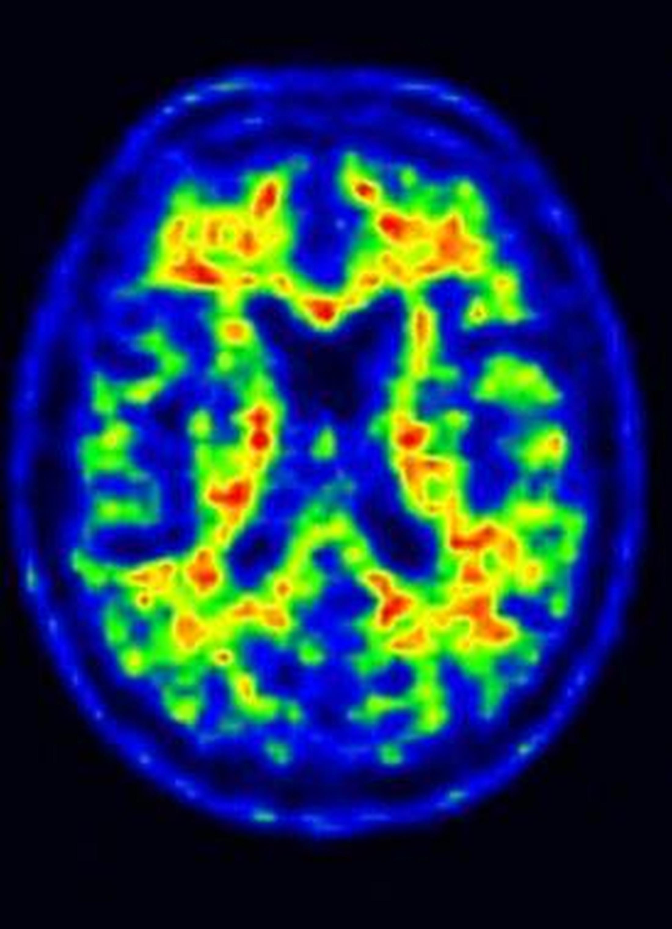 Aivojen amyloidi-PET-kuva. Tutkittavalla ei ole merkkiainekertymää aivojen kuorikerroksella. Normaali löydös. (Kuva Juha Rinne, TYKS ja TY)