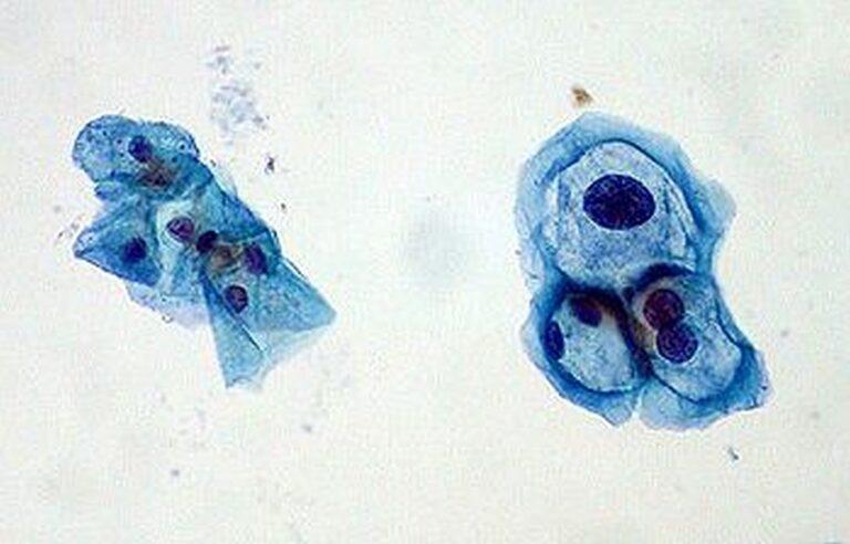 Vasemmalla HPV-viruksen sairastuttamia soluja, oikealla normaaleja. Creative Commons/Wikipedia
